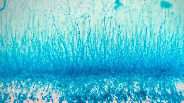 生殖細胞 体細胞 違い